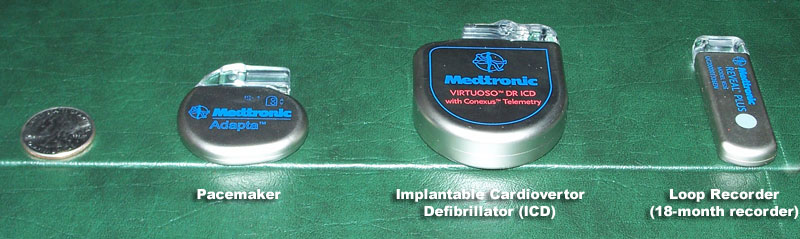 Pacemaker, Implantable Cardiovertor Defibrillator (ICD), and Loop Recorder  (18-month Pacemaker insertion ...